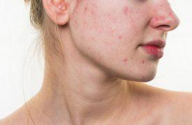 Các thành phần dể gây kích ứng da