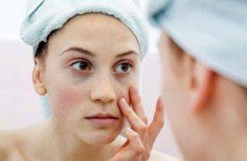 5 Cách chữa thâm mắt bằng nguyên liệu thiên nhiên