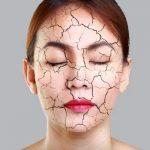 Bật bí cách 5 trị da khô toàn thân bằng nguyên liệu thiên nhiên