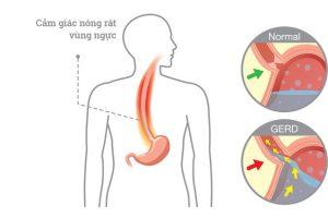 Nguyên nhân của trào ngược dạ dày thực quản