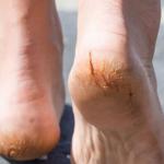 5 Cách trị nứt gót chân tại nhà có hiệu quả cao nhất