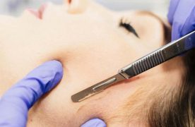 Có nên cạo lông mặt không? – Giải đáp từ các chuyên gia